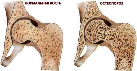 Остеопороз - заболевание