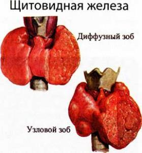 собственной щитовидной железой