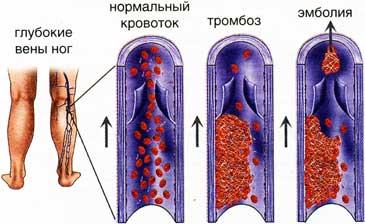Атеросклероз развивается