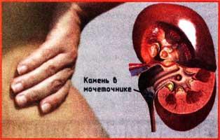 инфекции мочевыводящих путей