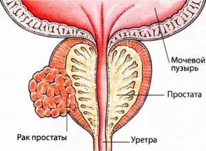 диагностике рака предстательной железы